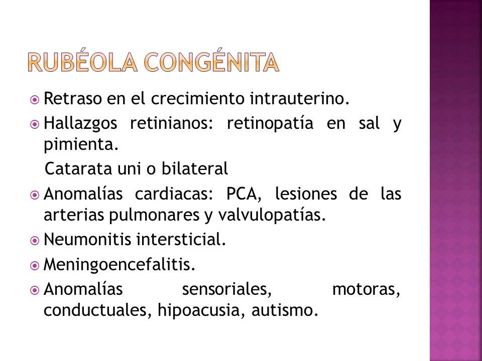 Retraso en el crecimiento intrauterino. Hallazgos retinianos: retinopatía en sal y pimienta. Catarata uni o bilateral Anomalías cardiacas: PCA, lesion