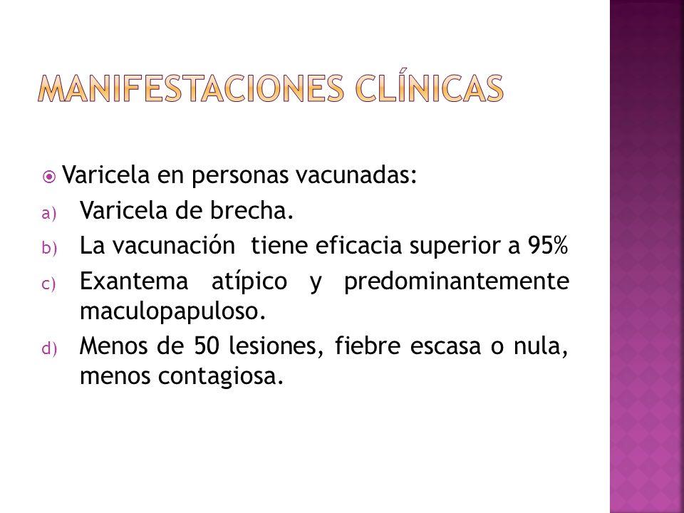 Varicela en personas vacunadas: a) Varicela de brecha. b) La vacunación tiene eficacia superior a 95% c) Exantema atípico y predominantemente maculopa