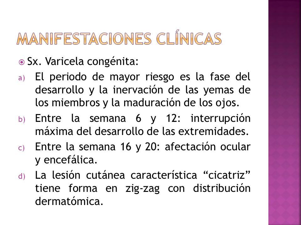 Sx. Varicela congénita: a) El periodo de mayor riesgo es la fase del desarrollo y la inervación de las yemas de los miembros y la maduración de los oj