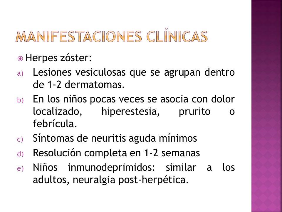 Herpes zóster: a) Lesiones vesiculosas que se agrupan dentro de 1-2 dermatomas. b) En los niños pocas veces se asocia con dolor localizado, hiperestes