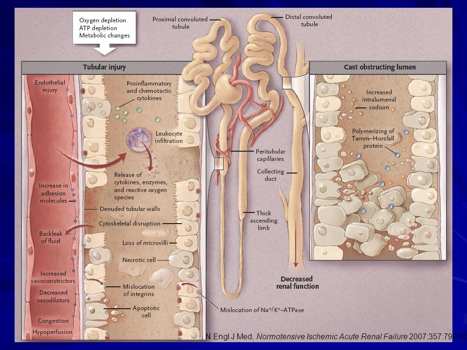 N Engl J Med, Normotensive Ischemic Acute Renal Failure 2007;357:797-805