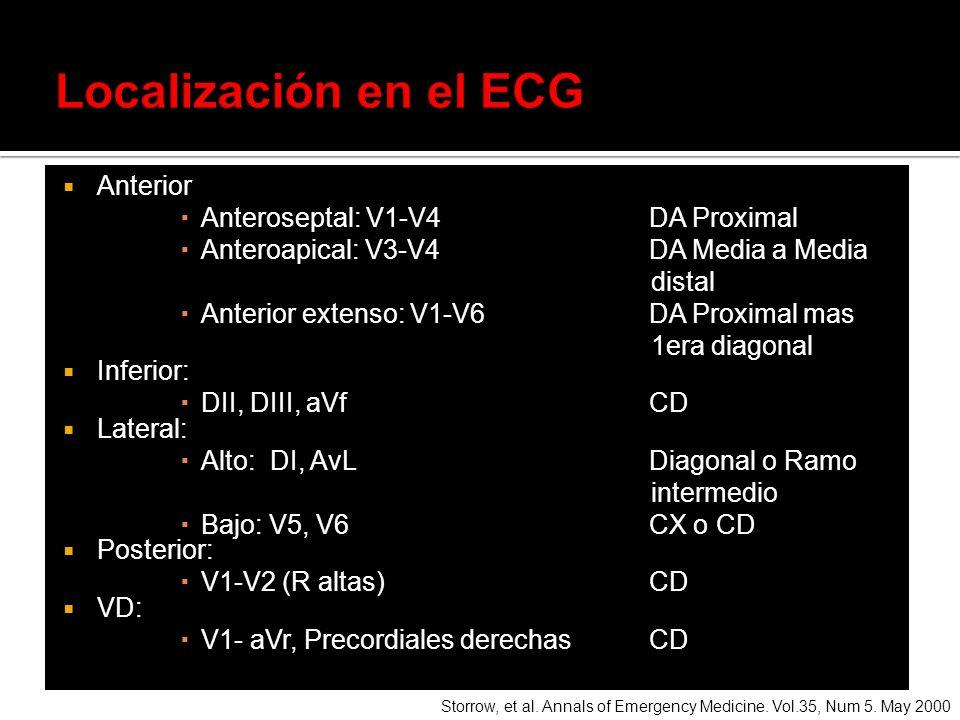 Anterior Anteroseptal: V1-V4 DA Proximal Anteroapical: V3-V4 DA Media a Media distal Anterior extenso: V1-V6 DA Proximal mas 1era diagonal Inferior: D