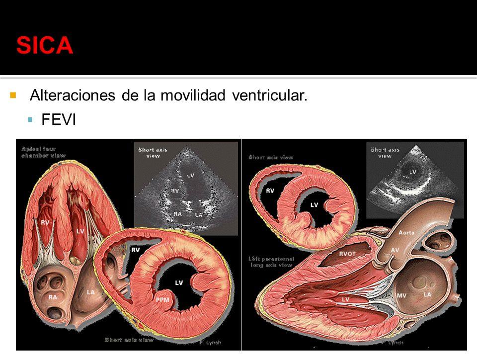 Alteraciones de la movilidad ventricular. FEVI