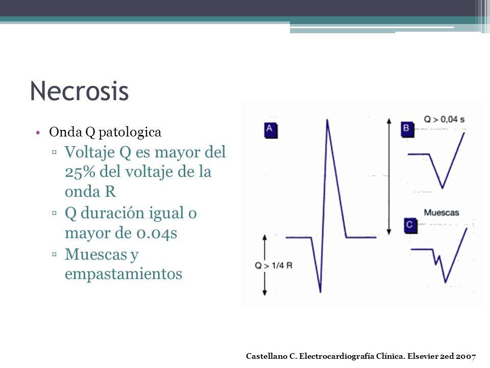 Necrosis Onda Q patologica Voltaje Q es mayor del 25% del voltaje de la onda R Q duración igual o mayor de 0.04s Muescas y empastamientos Castellano C