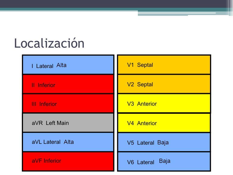 Localización Baja Alta