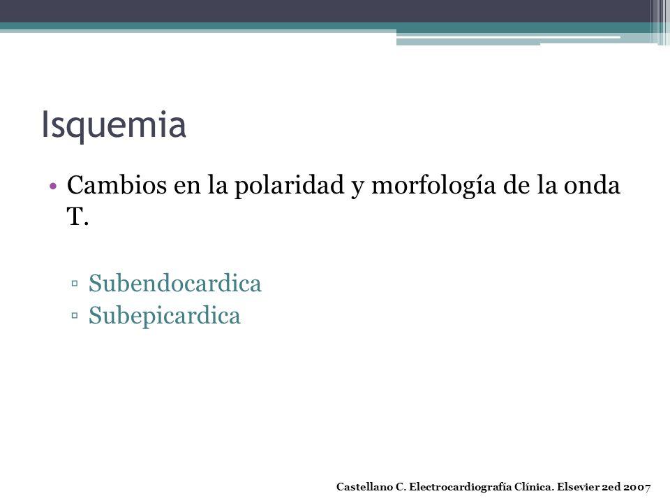 Isquemia Cambios en la polaridad y morfología de la onda T. Subendocardica Subepicardica Castellano C. Electrocardiografía Clínica. Elsevier 2ed 2007