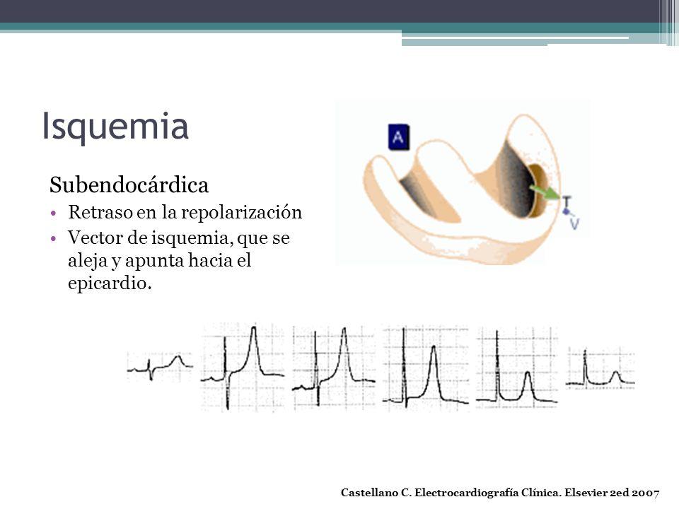 Isquemia Subendocárdica Retraso en la repolarización Vector de isquemia, que se aleja y apunta hacia el epicardio. Castellano C. Electrocardiografía C