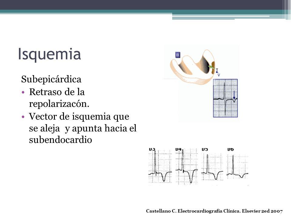 Isquemia Subepicárdica Retraso de la repolarizacón. Vector de isquemia que se aleja y apunta hacia el subendocardio Castellano C. Electrocardiografía