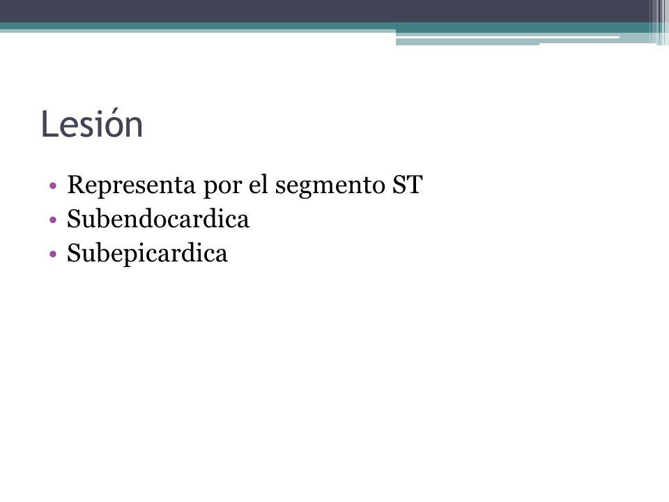 Lesión Representa por el segmento ST Subendocardica Subepicardica