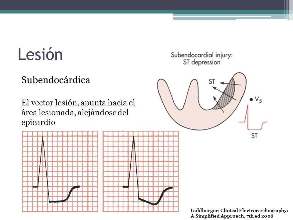 Lesión Subendocárdica El vector lesión, apunta hacia el área lesionada, alejándose del epicardio Goldberger: Clinical Electrocardiography: A Simplifie