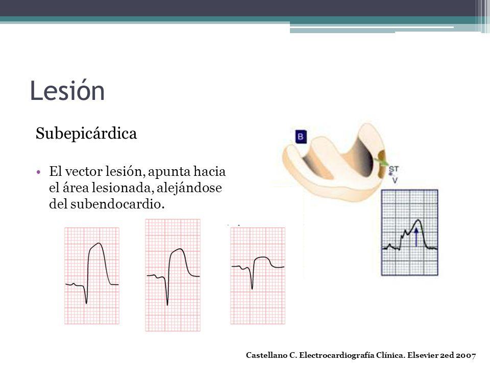 Lesión Subepicárdica El vector lesión, apunta hacia el área lesionada, alejándose del subendocardio. Castellano C. Electrocardiografía Clínica. Elsevi
