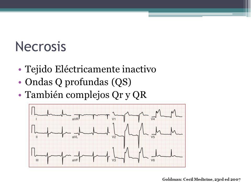 Necrosis Tejido Eléctricamente inactivo Ondas Q profundas (QS) También complejos Qr y QR Goldman: Cecil Medicine, 23rd ed 2007