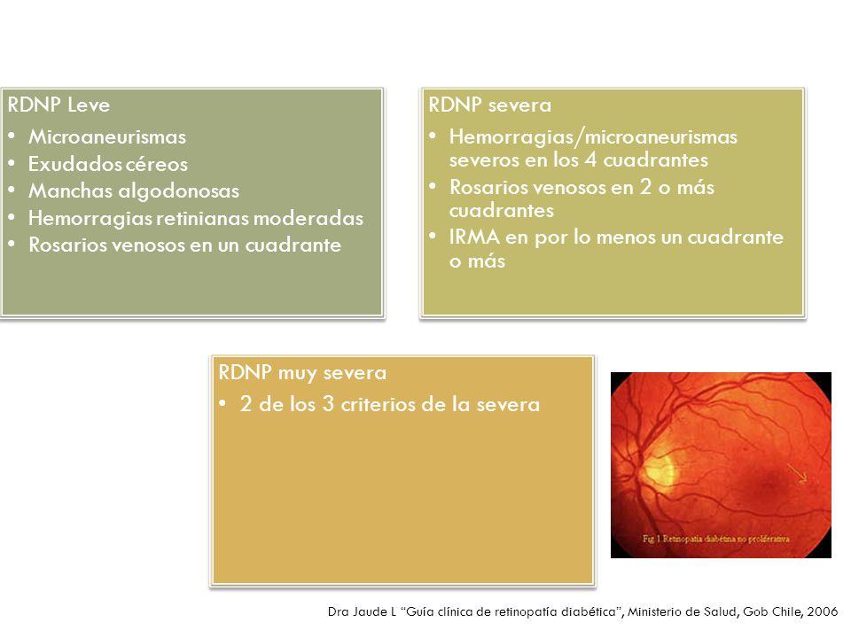 RDNP Leve Microaneurismas Exudados céreos Manchas algodonosas Hemorragias retinianas moderadas Rosarios venosos en un cuadrante RDNP severa Hemorragia