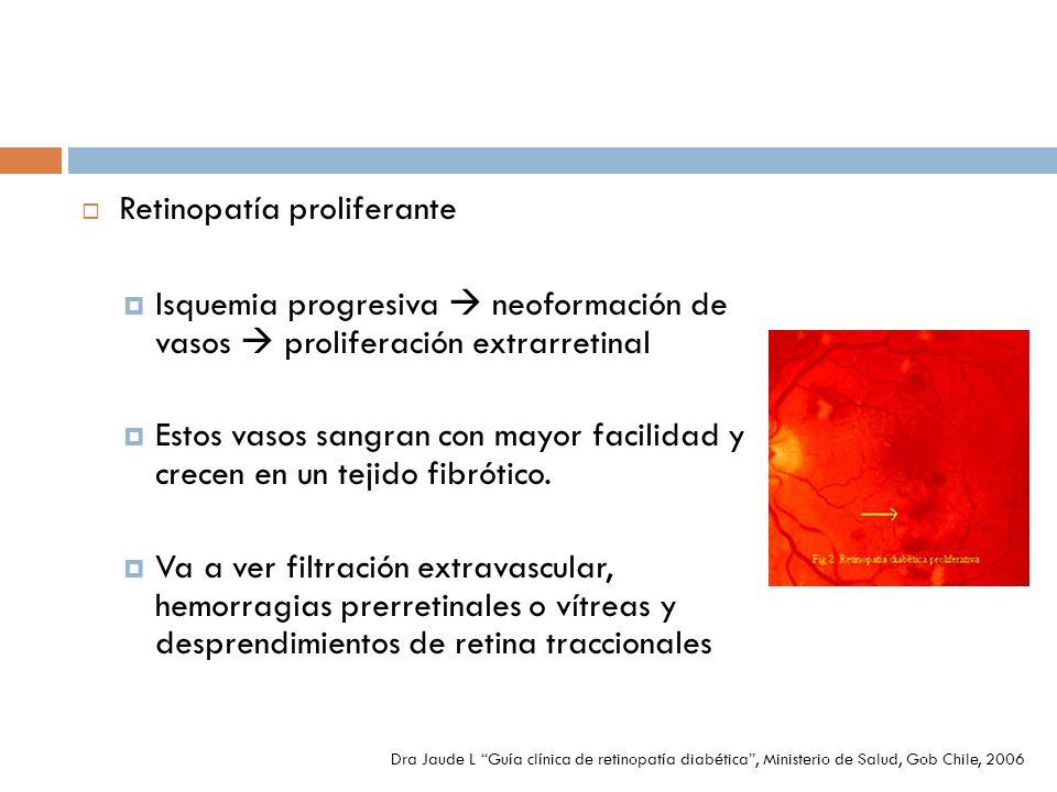 Retinopatía proliferante Isquemia progresiva neoformación de vasos proliferación extrarretinal Estos vasos sangran con mayor facilidad y crecen en un