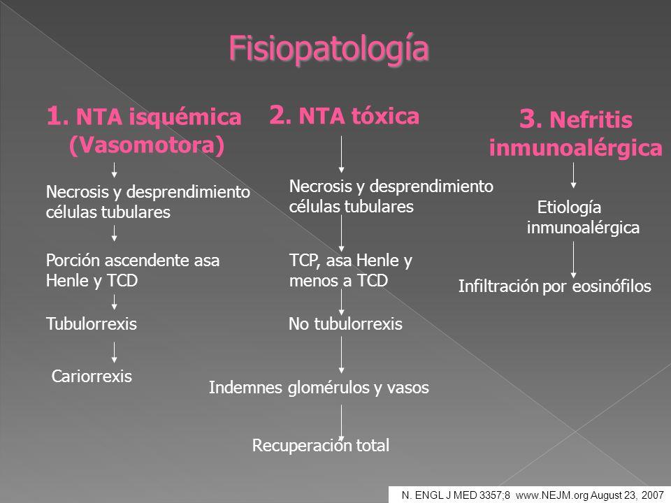 Fisiopatología 1. NTA isquémica (Vasomotora) 2. NTA tóxica 3. Nefritis inmunoalérgica Necrosis y desprendimiento células tubulares Porción ascendente