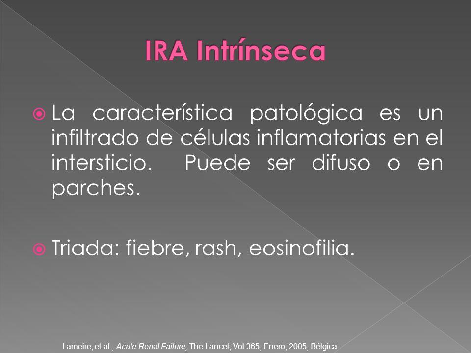 La característica patológica es un infiltrado de células inflamatorias en el intersticio. Puede ser difuso o en parches. Triada: fiebre, rash, eosinof