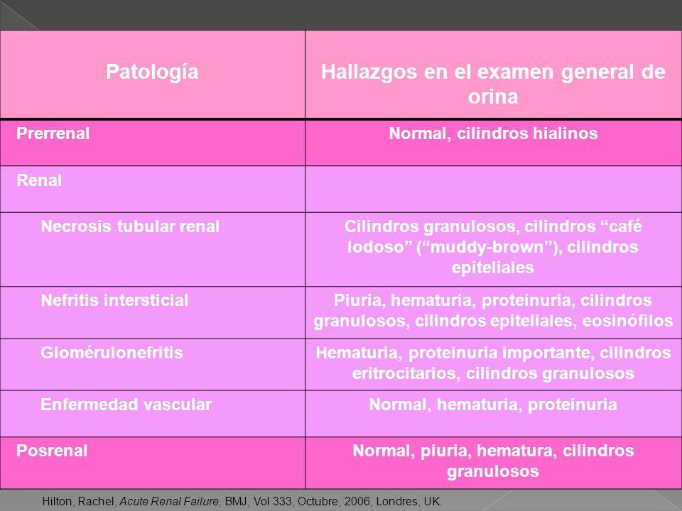 Extremidades: Asterixis Mioclonías Pulmonar Respiración acidotica Hematológico: Tendencia a equimosis PatologíaHallazgos en el examen general de orina