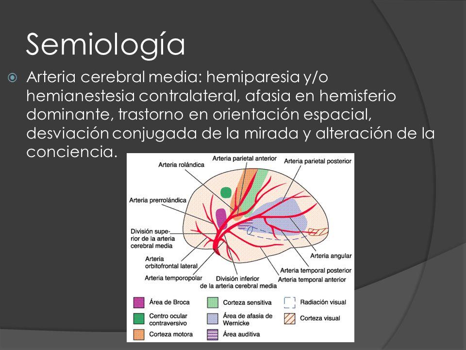Semiología Arteria cerebral media: hemiparesia y/o hemianestesia contralateral, afasia en hemisferio dominante, trastorno en orientación espacial, des