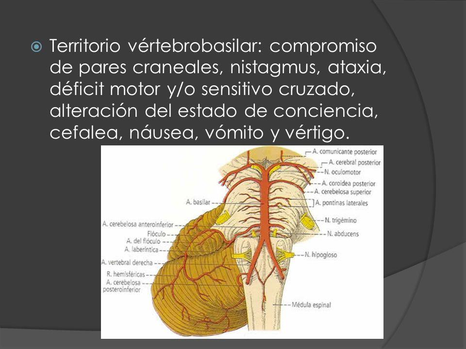 Territorio vértebrobasilar: compromiso de pares craneales, nistagmus, ataxia, déficit motor y/o sensitivo cruzado, alteración del estado de conciencia