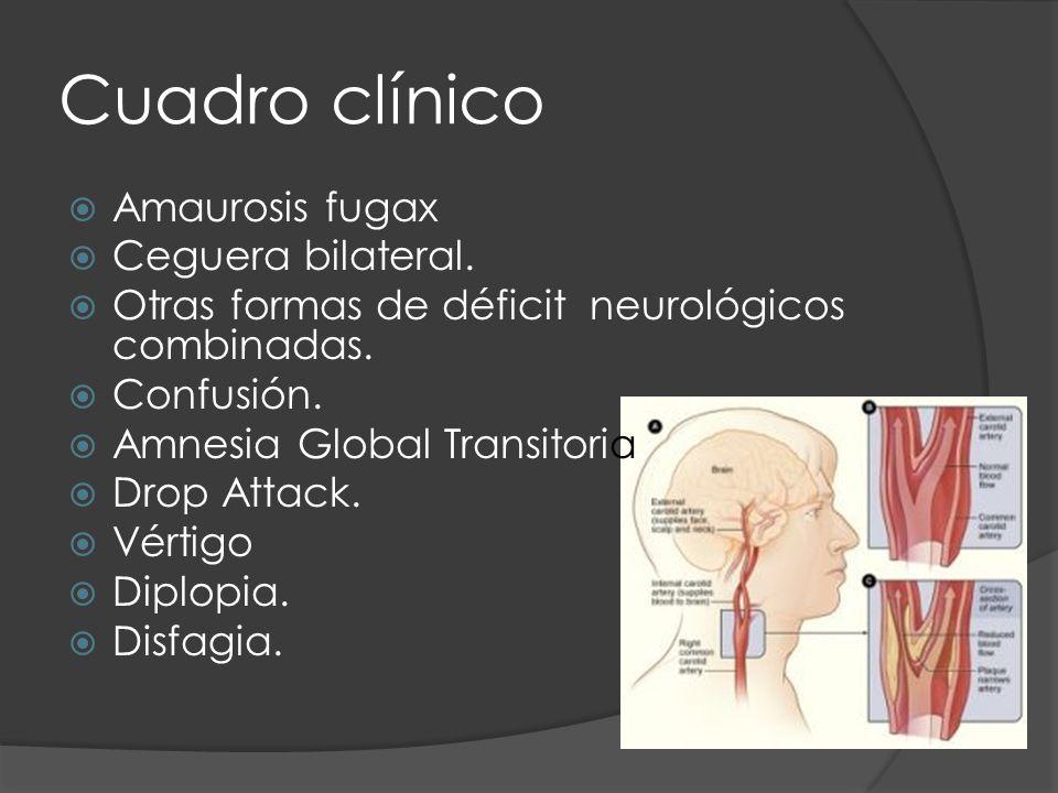 Cuadro clínico Amaurosis fugax Ceguera bilateral. Otras formas de déficit neurológicos combinadas. Confusión. Amnesia Global Transitoria. Drop Attack.