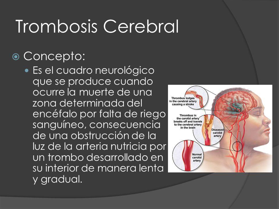 Trombosis Cerebral Concepto: Es el cuadro neurológico que se produce cuando ocurre la muerte de una zona determinada del encéfalo por falta de riego s