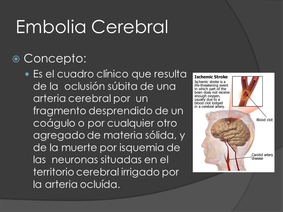 Embolia Cerebral Concepto: Es el cuadro clínico que resulta de la oclusión súbita de una arteria cerebral por un fragmento desprendido de un coágulo o