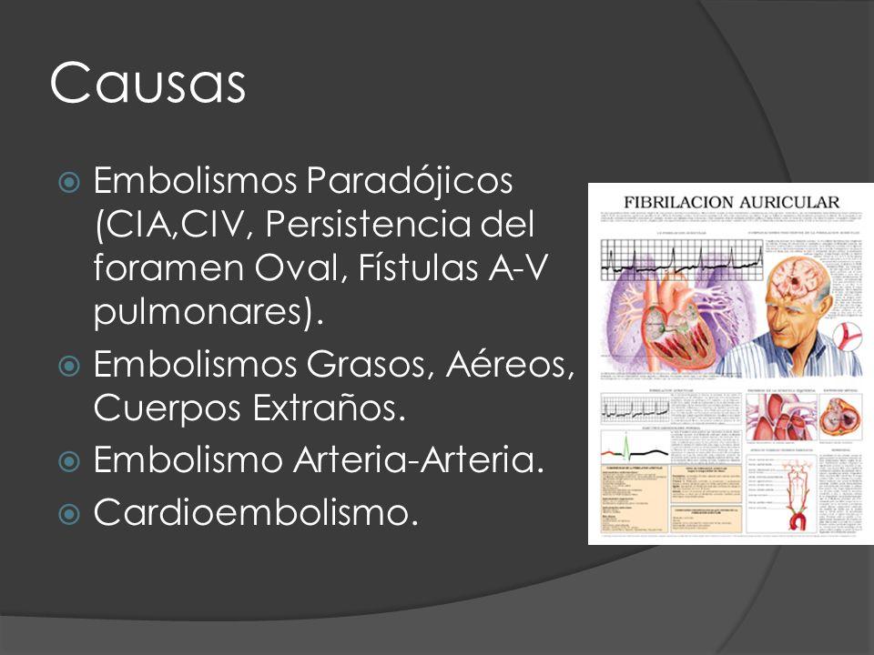 Causas Embolismos Paradójicos (CIA,CIV, Persistencia del foramen Oval, Fístulas A-V pulmonares). Embolismos Grasos, Aéreos, Cuerpos Extraños. Embolism