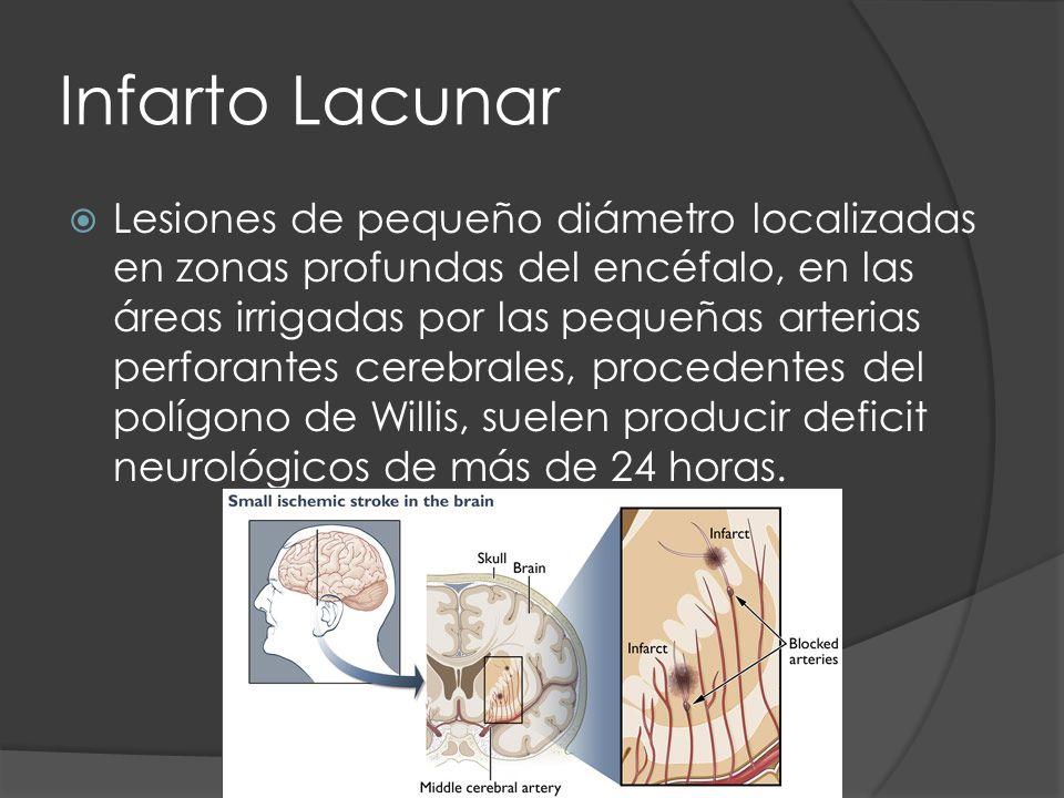 Infarto Lacunar Lesiones de pequeño diámetro localizadas en zonas profundas del encéfalo, en las áreas irrigadas por las pequeñas arterias perforantes