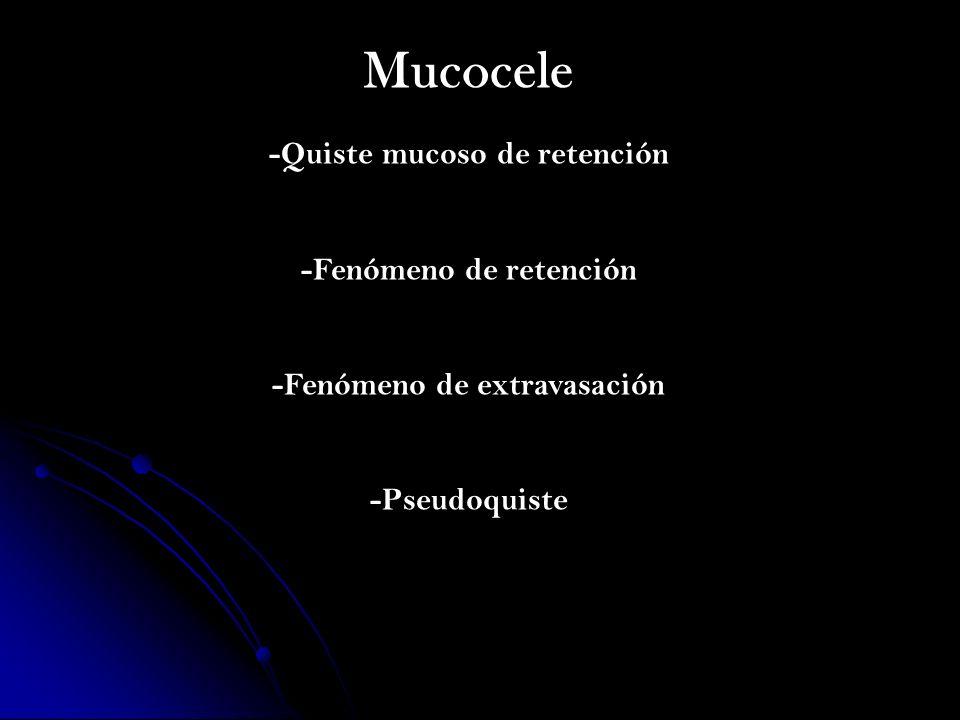 Mucocele -Quiste mucoso de retención -Fenómeno de retención -Fenómeno de extravasación -Pseudoquiste