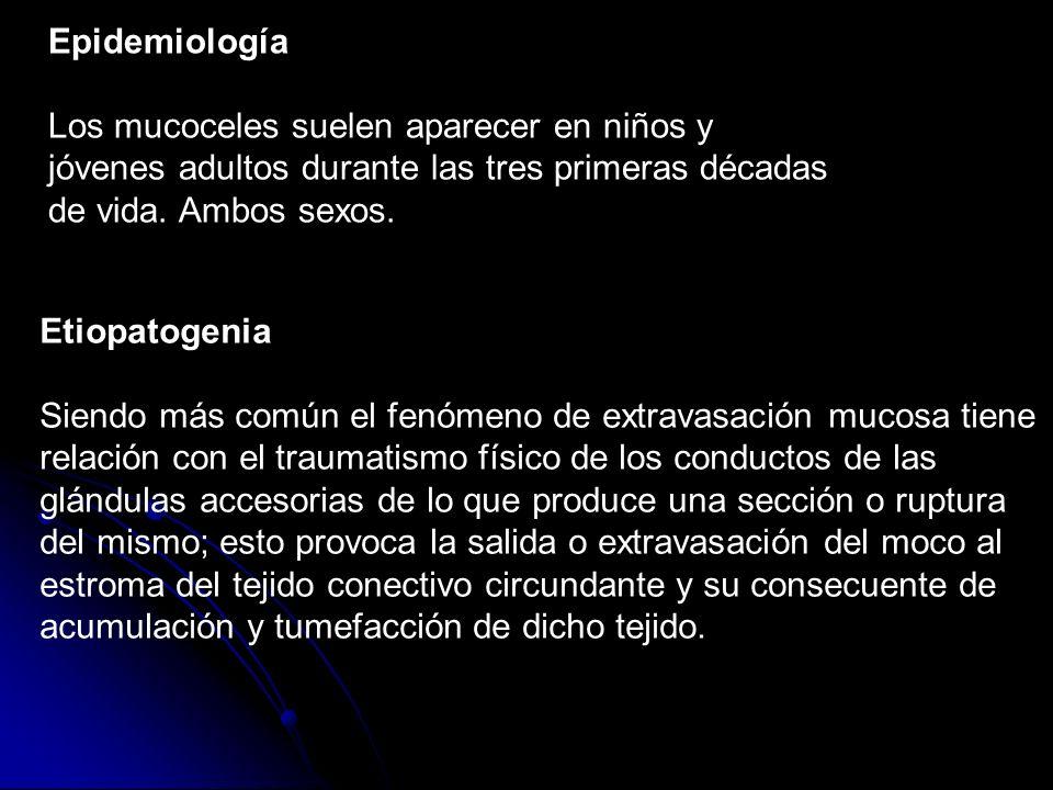 Epidemiología Los mucoceles suelen aparecer en niños y jóvenes adultos durante las tres primeras décadas de vida. Ambos sexos. Etiopatogenia Siendo má