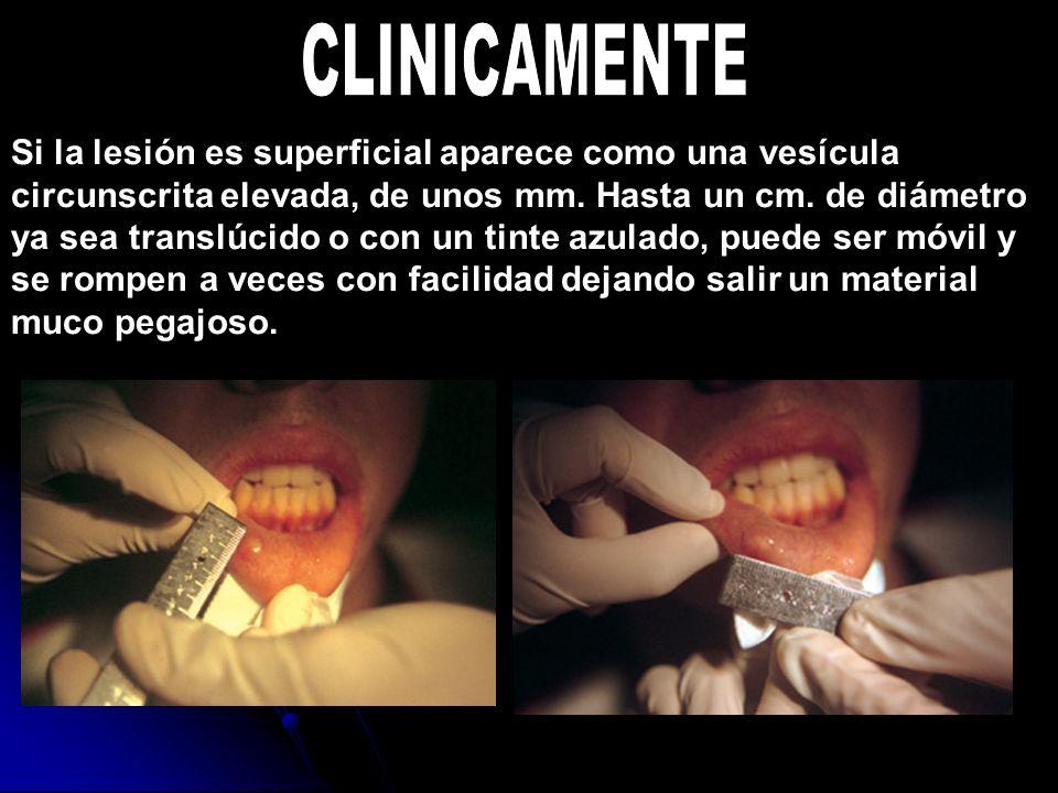 Si la lesión es superficial aparece como una vesícula circunscrita elevada, de unos mm. Hasta un cm. de diámetro ya sea translúcido o con un tinte azu