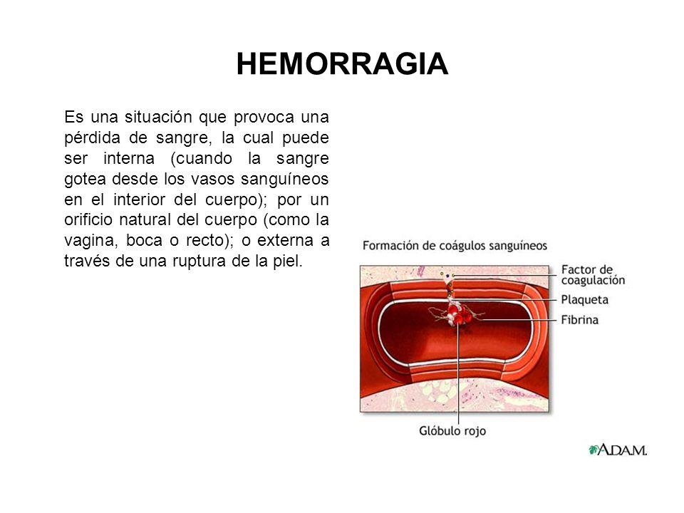 HEMORRAGIA Es una situación que provoca una pérdida de sangre, la cual puede ser interna (cuando la sangre gotea desde los vasos sanguíneos en el inte