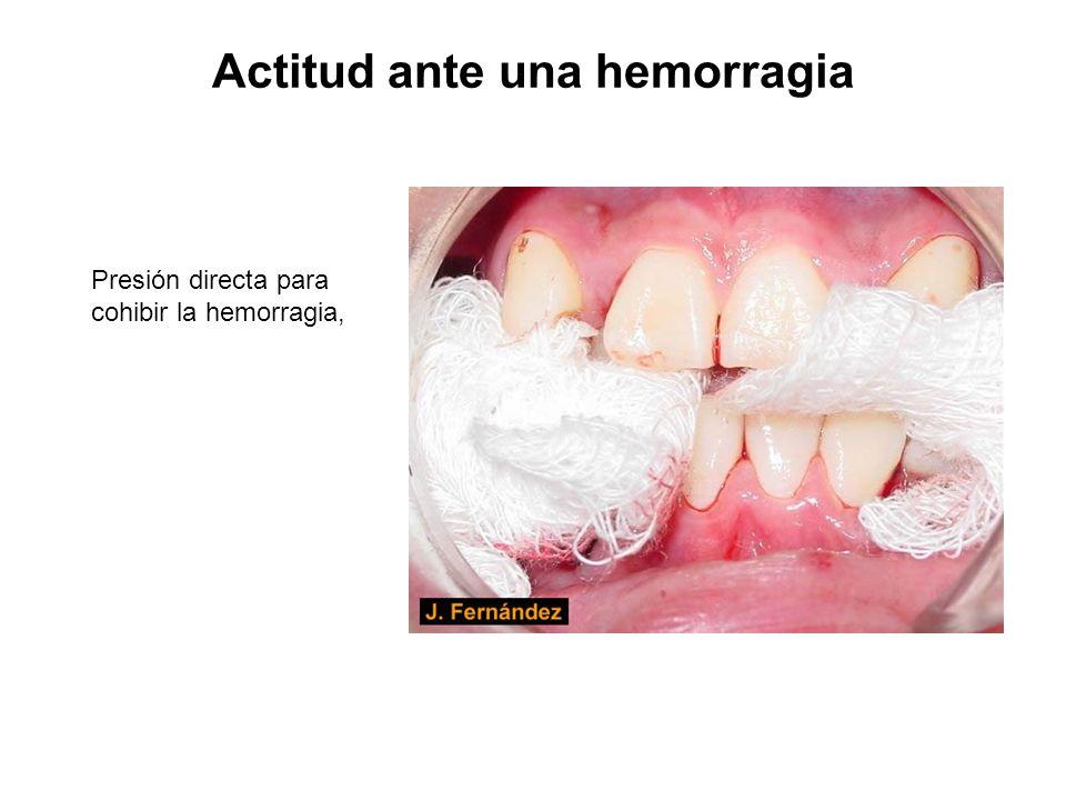 Actitud ante una hemorragia Presión directa para cohibir la hemorragia,