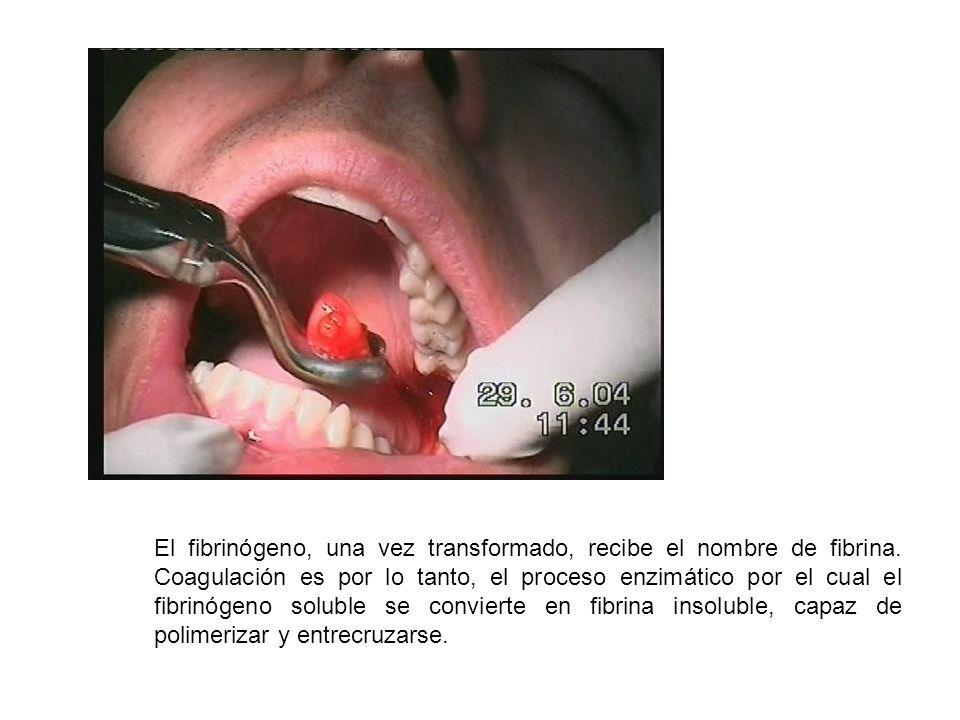 El fibrinógeno, una vez transformado, recibe el nombre de fibrina. Coagulación es por lo tanto, el proceso enzimático por el cual el fibrinógeno solub