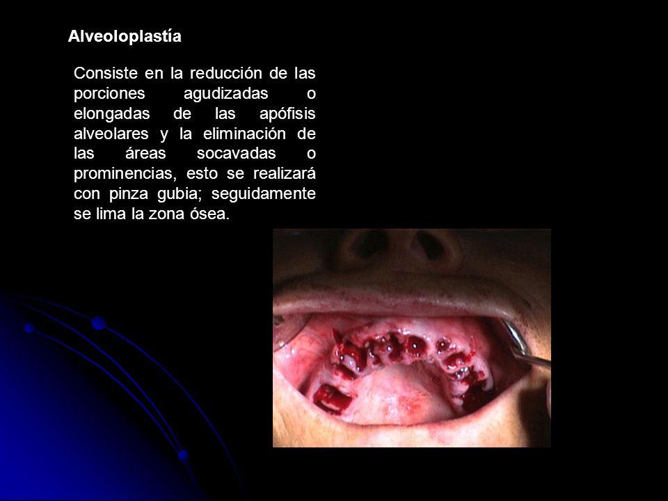 Consiste en la reducción de las porciones agudizadas o elongadas de las apófisis alveolares y la eliminación de las áreas socavadas o prominencias, es