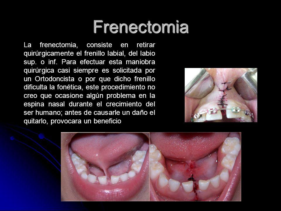 Frenectomia La frenectomia, consiste en retirar quirúrgicamente el frenillo labial, del labio sup. o inf. Para efectuar esta maniobra quirúrgica casi