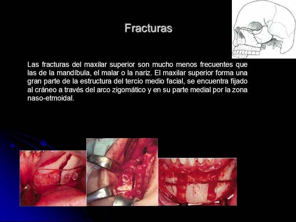 Fracturas Las fracturas del maxilar superior son mucho menos frecuentes que las de la mandíbula, el malar o la nariz. El maxilar superior forma una gr