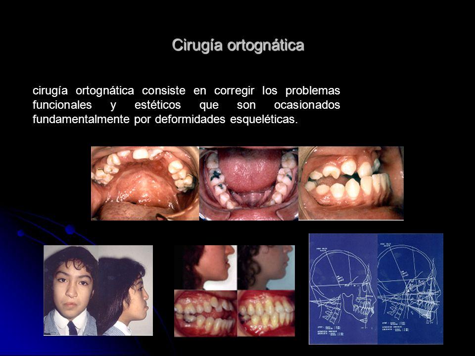 Cirugía ortognática cirugía ortognática consiste en corregir los problemas funcionales y estéticos que son ocasionados fundamentalmente por deformidad