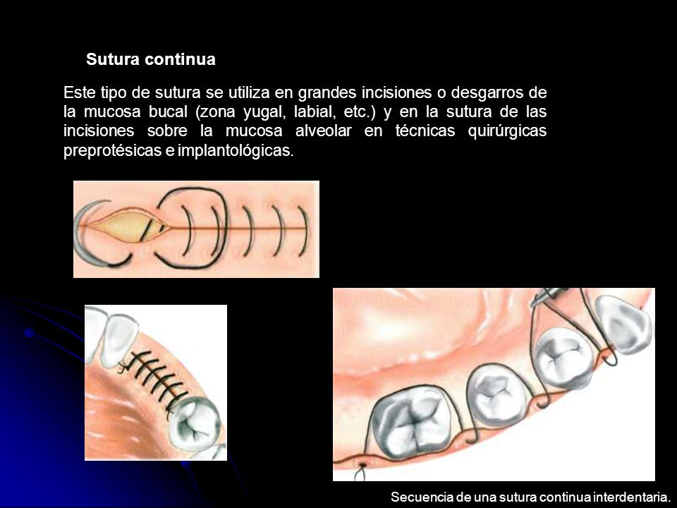 Sutura continua Este tipo de sutura se utiliza en grandes incisiones o desgarros de la mucosa bucal (zona yugal, labial, etc.) y en la sutura de las i