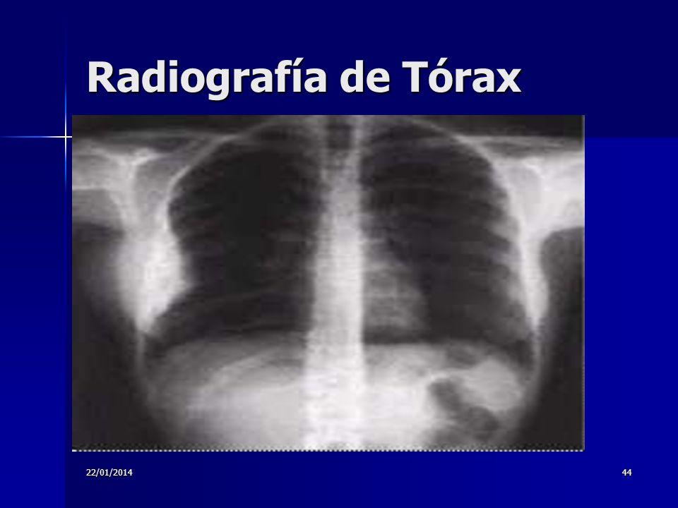 22/01/201444 Radiografía de Tórax