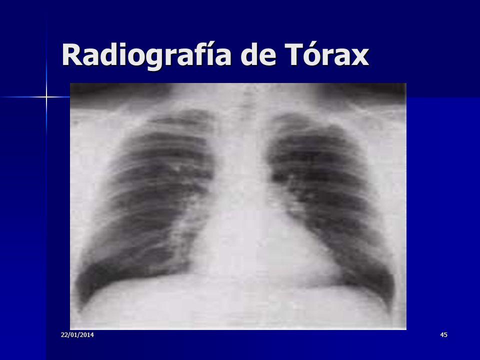 22/01/201445 Radiografía de Tórax