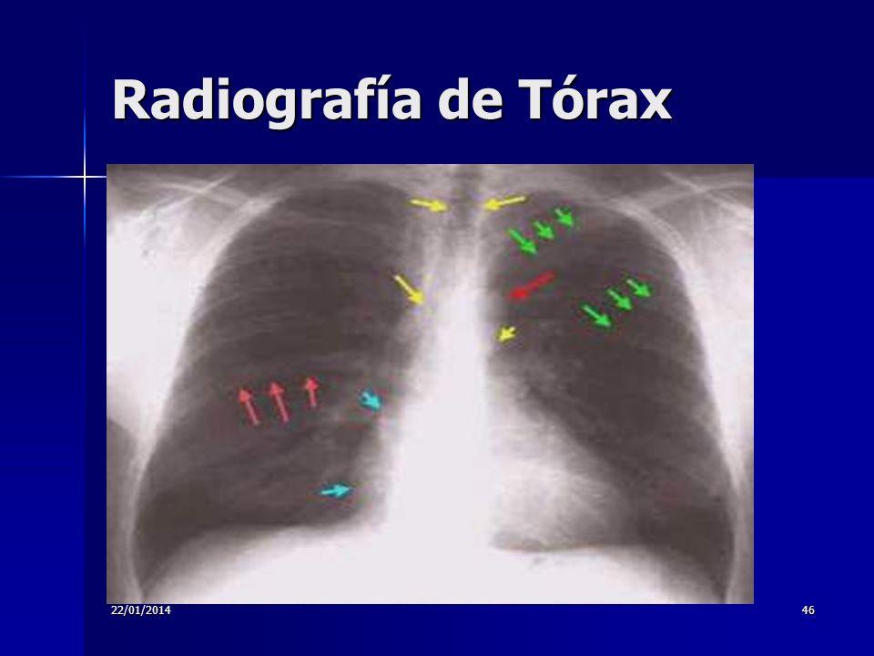 22/01/201446 Radiografía de Tórax