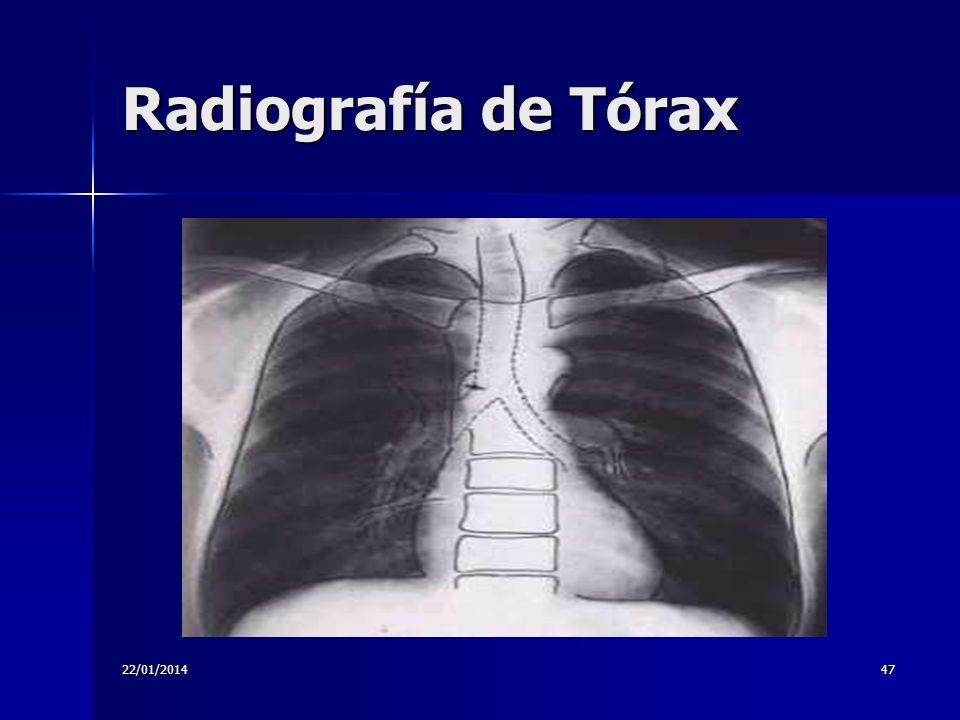 22/01/201447 Radiografía de Tórax