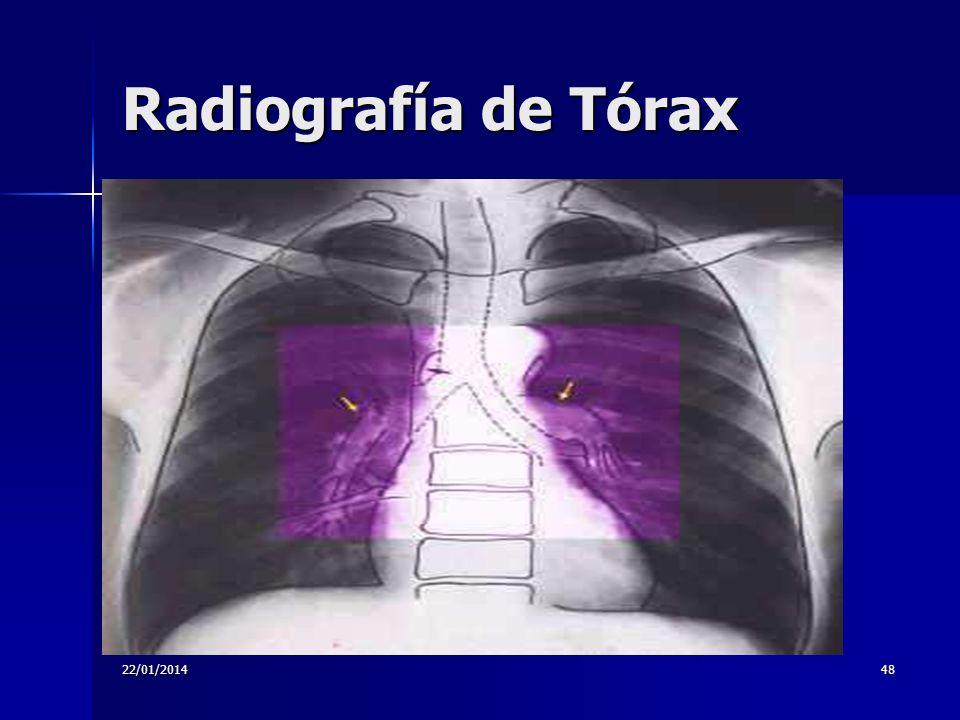 22/01/201448 Radiografía de Tórax