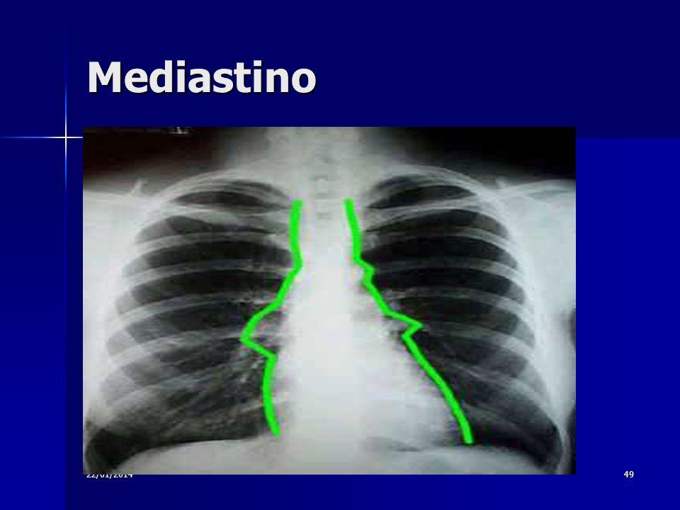 22/01/201449 Mediastino