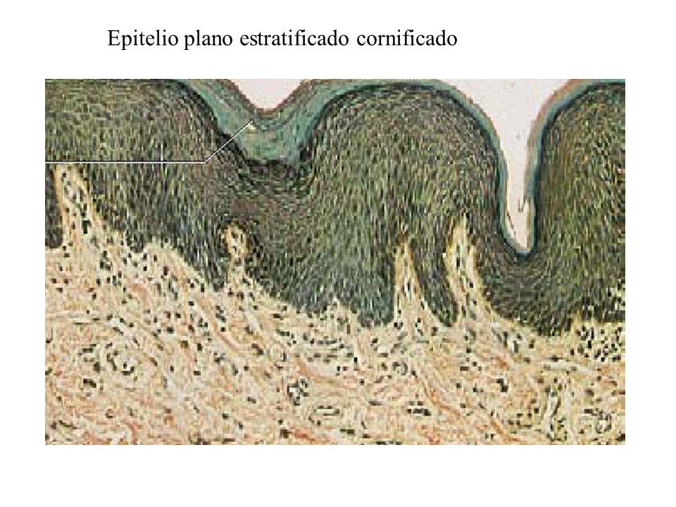Epitelio plano estratificado cornificado