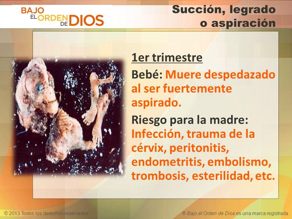 © 2013 Todos los derechos reservados ® Bajo el Orden de Dios es una marca registrada Succión, legrado o aspiración 1er trimestre Bebé: Muere despedaza