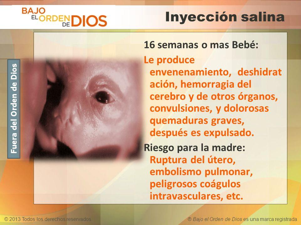 © 2013 Todos los derechos reservados ® Bajo el Orden de Dios es una marca registrada Inyección salina 16 semanas o mas Bebé: Le produce envenenamiento