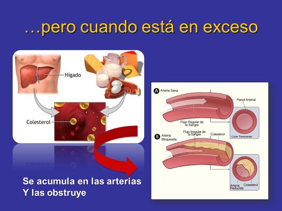 …pero cuando está en exceso Se acumula en las arterias Y las obstruye