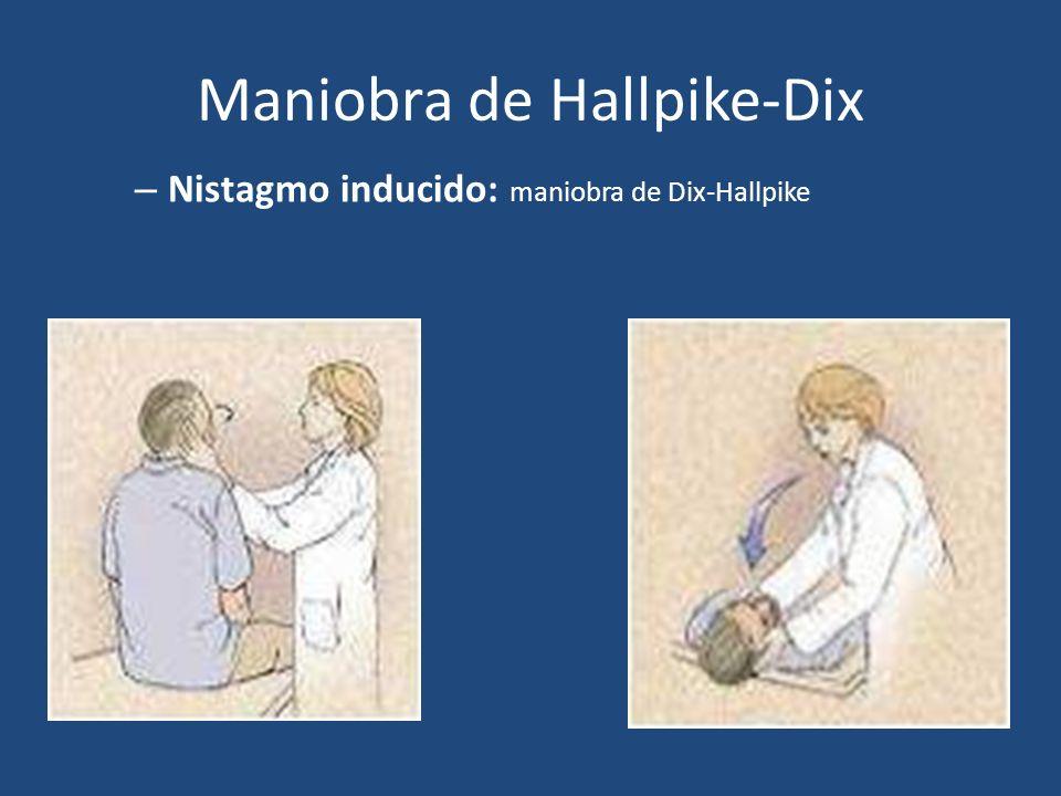 Maniobra de Hallpike-Dix – Nistagmo inducido: maniobra de Dix-Hallpike